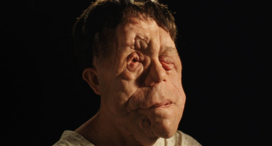 Adam Pearson in a scene from <i>Chained for Life</i>, courtesy Kino Lorber